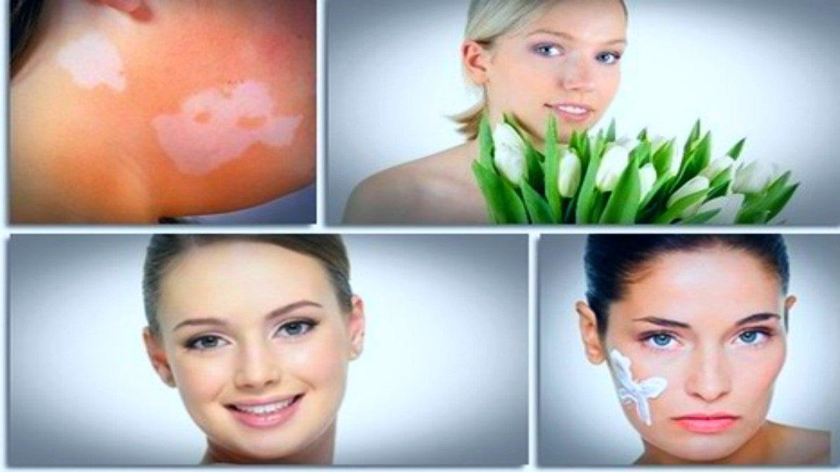 About Natural Vitiligo Treatment System