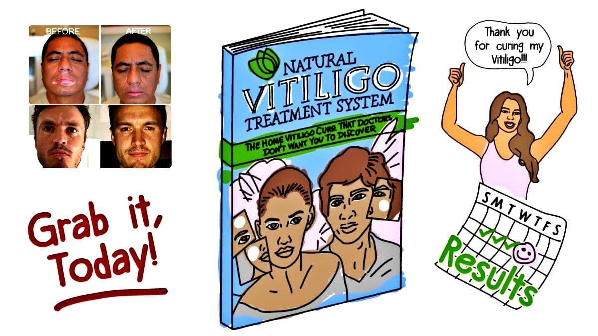 Audit Of Natural Vitiligo Treatment System