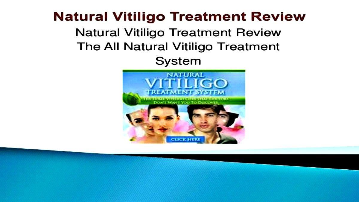 natural vitiligo treatment review